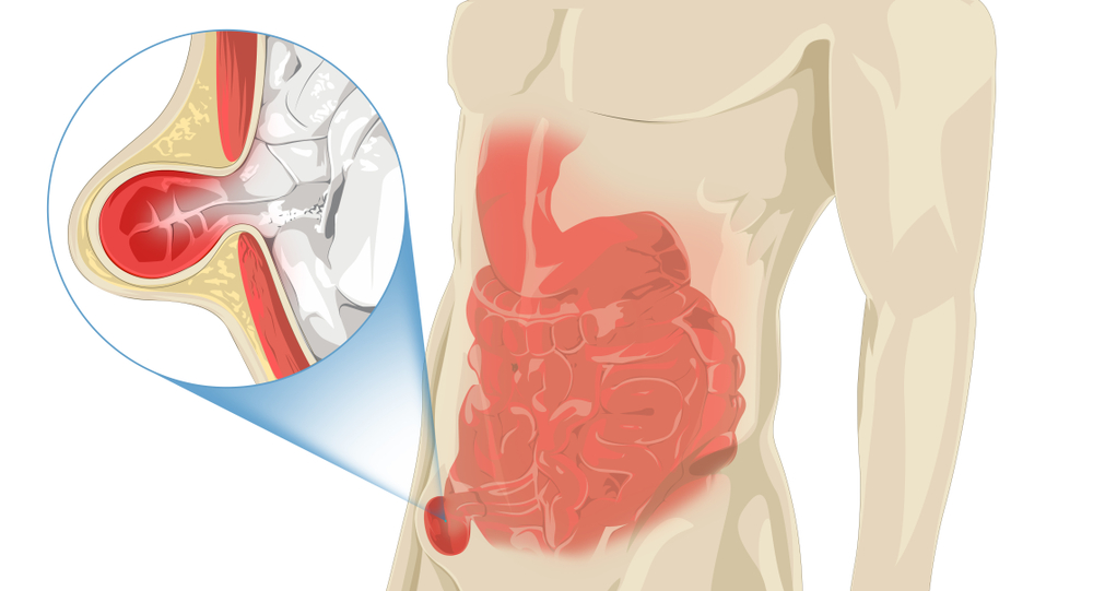 Human,Illustration,With,Stomach,Pain,,Zoom-in,Inguinal,Hernia
